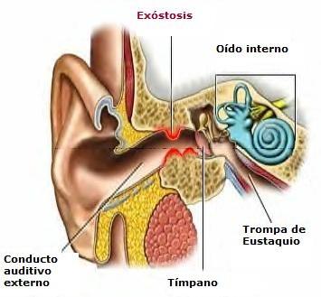 Dibujo de conducto auditivo externo con exóstosis