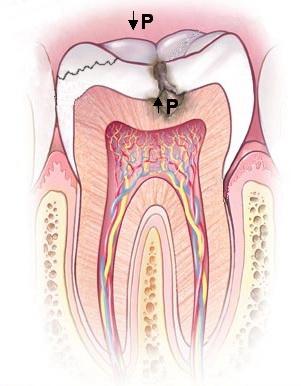 Dibujo esquemático sobre el mecanismo de producción de la odontocrexis