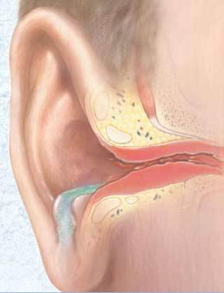Dibujo de otitis externa en buceador