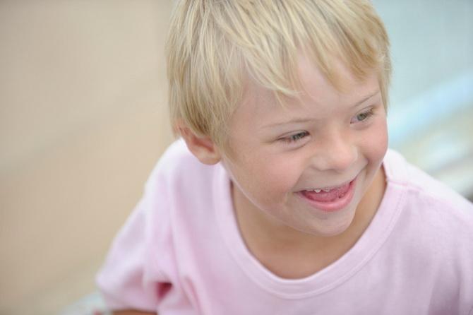 Niño con síndrome de Down al que se le van a realizar unos potenciales evocados auditivos de estado estable