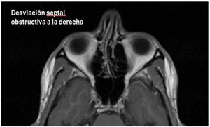 cirugia de septoplastia otorrino madrid