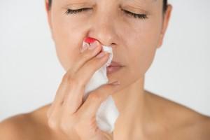 Epistaxis, sangrado nariz, hemorragia nasal