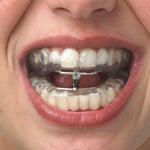 Paciente roncador con férula de avance mandibular