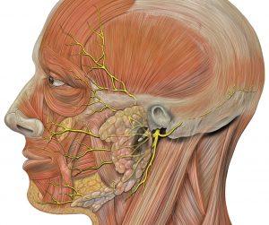Parotidectomía