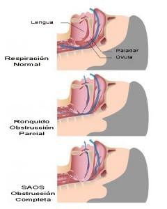 Dibujo esquemático de la obstrucción de la vía respiratoria alta en el ronquido y el SAOS