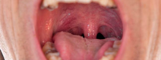 hpv garganta sintomas tratamiento