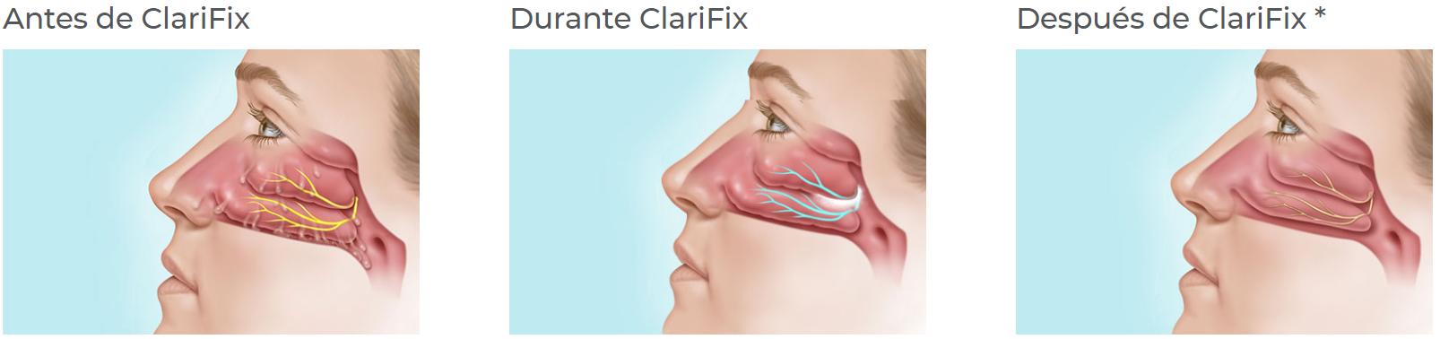 clarifix rinitis crónica