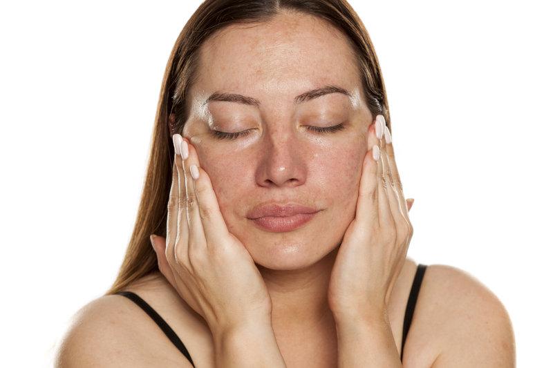 tratamiento de eliminacion manchas cara estetica madrid